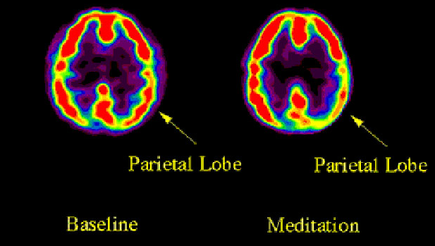 Neurological research uses MRI scanning to document changes to the brain during and after meditation. Researchers find increased activity in the prefrontal cortex and decreased activity in the parietal lobe of meditation practitioners.